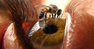 Bee-Sting-Treatment-at-Exer-More-Than-Urgent-Care